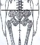 Ideal posture posterior view